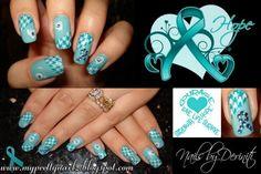 PCOS/Ovarian Cancer Awareness Nails | NAILPRO