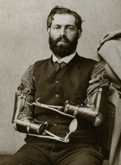 Nineteenth-century prosthetics