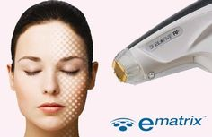 eMatrix, also known as Sublative Rejuvenation, a non-laser and non-light−based treatment that utilizes Radio Frequency energy delivered to the dermis where it can produce significant deep tissue improvements with very minimal impact on the epidermis. What problems of the skin will eMatrix treat?  eMatrix skin rejuvenation is used for a wide variety of skin problems which includes Acne Scarring & Other Scars Sun Damage Fine Wrinkling New! eMatrix for Eyes Poor Skin Texture, Tone or Enlarged…