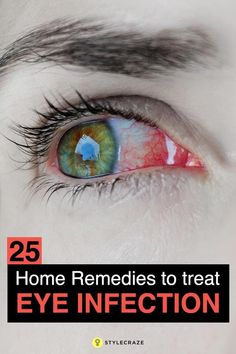 14 Effective Home Remedies For Sore Eyes