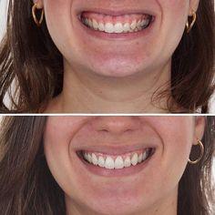 #Repost @odontoclub with @repostapp Mais um caso sensacional do @dr.felipe.bezerra ! Repost: TRANSFORMAÇÃO DO SORRISO com Aumento de Coroa Um Sorriso não é composto apenas de dentes mas sim pela relação deles com os lábios com a gengiva e aspectos particulares que cada rosto tem. --- Há um fenômeno chamado de ERUPÇÃO PASSIVA ALTERADA em que no período de erupção dentária a migração dos tecidos periodontais não ocorre da forma correta e assim parte da Coroa Dentária fica coberta por tecido…