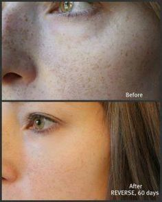 I love what Reverse can do for sun damaged skin!