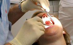 Diş çektirmek orucu bozarmı