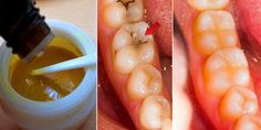 Reverse Cavities Naturally And Heal Tooth Decay With This Powerful Tooth Mask | Healthy Living 93