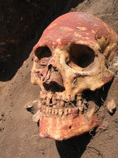 In Ancient DNA, Evidence of Plague Much Earlier Than Previously Known - The New York Times - A human skull from the Yamnaya, a nomadic Bronze Age people from western Russia.  Scientists theorize that plague epidemics may have enabled the Ymanaya and other groups of people to move into new territories because deaths from plague caused worker shortages.