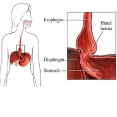 Effective Natural Cures For Hiatal Hernia