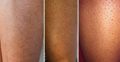 Get rid of the dark pores on your legs Many women . - , Get rid of the dark pores on your legs Many women . Dark Spots Under Armpits, Dark Spots On Legs, Dark Armpits, Brown Spots, Homemade Beauty Tips, Face Scrub Homemade, Shrink Pores, Home Remedies For Acne, Healthy Skin