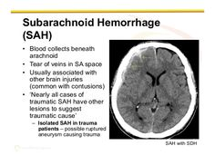 Subarachnoid hemorrhage Subarachnoid Hemorrhage, Brain Injury Awareness, Nuclear Medicine, Icu Nursing, String Theory, Quantum Mechanics, Neurology, Radiology, Psychiatry