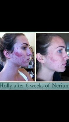 You can also have amazing results like this too!! Contact me at: smoothmovegoodlookin.com