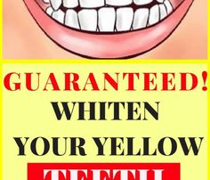 Yellow teeth are very embarrassing, and therefore, don't want to smile and laugh.Luckily, you can have white teeth without spending your money on products that are filled with chemicals and don't give the promised results.