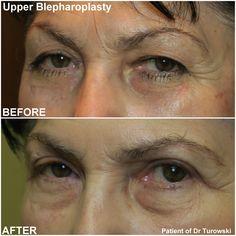 Eyelid Lift, Eyelid Surgery, Plastic Surgery, Chicago