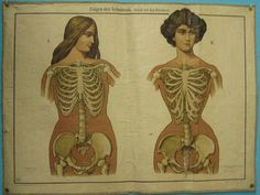 women with and without corsets   Vintage illustration showing some of the physical repercussions of ...