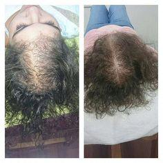 Regrow Your Hair - alopecia