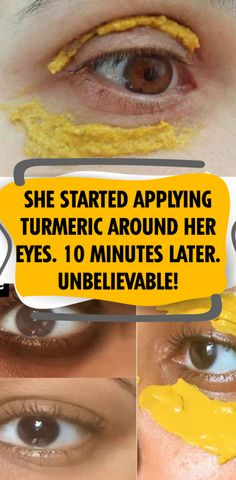 She Started Applying Turmeric Around Her Eyes. 10 Minutes Later. Unbelievable! Natural Hair Mask, Natural Hair Styles, Natural Beauty, Natural Skin, Natural Healing, Diy Hacks, All You Need Is, How To Grow Eyebrows, Skin Tag Removal
