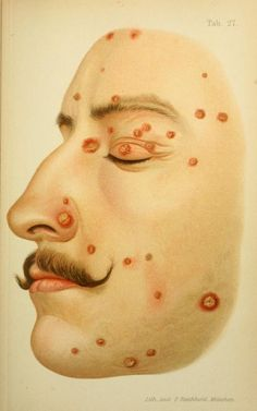 'Small Pustules on the face'  From 'Atlas of syphilis and the venereal diseases, including a brief treatise on the pathology and treatment' by Prof. Dr. Franz Mracek, 1898.