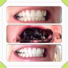Activated charcoal on your teeth to whiten them. All natural and super cheap   Only takes 5 minutes  http://livelaughandlovewithlana.blogspot.com/2013/12/natural-teeth-whitening.html