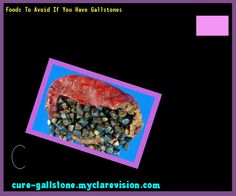 Foods To Avoid If You Have Gallstones 145628 - Cure Gallstone