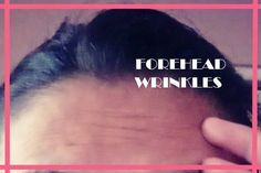Get Rid of Deep Forehead Wrinkles How to Get Rid of Deep Forehead Wrinkles?How to Get Rid of Deep Forehead Wrinkles? Chin Acne Causes, Natural Wrinkle Remedies, Face Cream For Wrinkles, Face Creams, Face Care, Skin Care, Eye Wrinkle, Top
