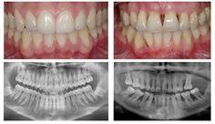 Periodontics xrays comparison. Ralph S. Zotovich, DDS - pediatric dentist in San Jose, CA @ www.dds4kids.com