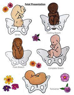 Doula Training, Birth Business Mentor, Educator and Influencer Nursing School Notes, Ob Nursing, Newborn Nursing, Breastfeeding, Nclex, Childbirth Education, Midwifery, Nurse Life, Nursing Students