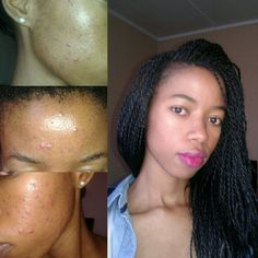Accutane, Oratane, Isotretrion  Before(pic taken at night) and after(pic taken during the day).....Accutane on black skin