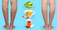 EVERYDAY HACKS YOU NEED TO KNOW This time I'll show you how to treat different diseases through activating certain acupressure points! Varicose Vein Remedy, Varicose Veins Treatment, Home Remedies, Natural Remedies, Diy Natural Beauty Hacks, Homemade Deodorant, Girl Life Hacks, Home Treatment, Body Hacks