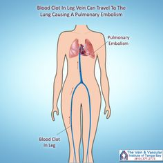 Blood sitting in the leg veins, due to chronic venous insufficiency, can cause a blood clot to develop in the leg veins that can travel to the lungs, causing a potentially deadly pulmonary embolism.  To learn more about venous insufficiency, visit: https://www.tampavascularsurgeon.com/service/venous-insufficiency-treatment-tampa/  #VeinSurgeonTampa #ChronicVenousInsufficiencyDoctorTampaFL #ChronicVenousInsufficiencyTreatmentTampaFL