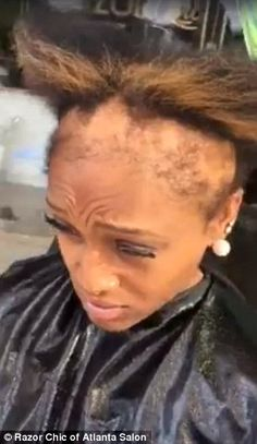 Damaged: Jasmine Collins, owner of Razor Chic of Atlanta, shared a video of this severe hair loss, which was the result of years of constantly wearing weaves and sew-ins Baby Hair Loss, Dht Hair Loss, Hair Loss Cure, Oil For Hair Loss, Stop Hair Loss, Hair Loss Remedies, Razor Chic Of Atlanta, Diy Hair Loss Treatment, Hair Loss Shampoo