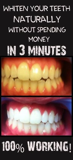 Natural Teeth White http://reviewscircle.com/Teeth-Whitening-4-You