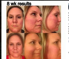 Nicole Gunn used Unblemish and Soothe for 8 weeks.
