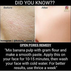 Good Skin Tips, Healthy Skin Tips, Clear Skin Tips, Diy Hair Treatment, Skin Treatments, Skin And Hair Clinic, Beauty Tips For Glowing Skin, Skin Care Routine Steps, Skin Care Remedies