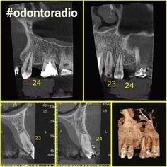 Reaborção radicular externa apical. #radiologia #odontoradio #odontologia #xray #tomografia #dentist #dentistry #oralradiology #ctbmf #radiologiaodontologica #tomography #radiology #odontoiatria #implantodontia #imaging #conebeam #lajeado #teutonia #implantes #orto #endodontia #oralradiology