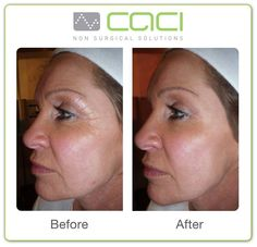 CACI Non-Surgical Facelift Before and After Results. More information on the procedure on our website: http://www.clearskin.ie/wrinkles/caci-non-surgical-facelift #Clearskin #Caci #nonsurgicalfacelift