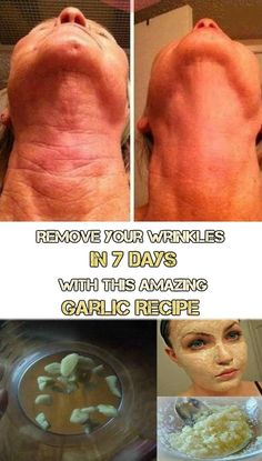 Wrinkles come with age and we can't stop the process of aging. But we can do something to get rid of the wrinkles and look younger every day. This garlic recipe will make the wrinkles disappear in 7 days. This remedy is natural and more effective than the Anti Aging Tips, Anti Aging Skin Care, Garlic Recipes, Prevent Wrinkles, Wrinkles On Face, Wrinkle Remover, Skin Treatments, Face Care, Healthy Skin