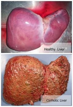 �lověk human on pinterest anatomy human body and