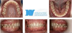 Before and After - Hurley & Volk Orthodontics | South Elgin Schaumburg Hampshire IL