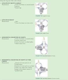 Maxillary central incisor (facial aspect).   Dentistry   Pinterest ...
