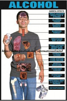 The affects of Alcohol! Tell me again how the doctors are saying moderate alcohol consumption is good for you?