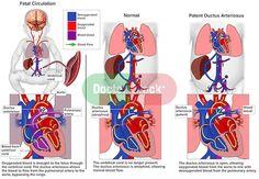 infant heart | Congenital Heart Defects - Patent Ductus Arteriosus. Depicts fetal ...