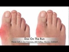 Best Way to Diagnose Gout in the Foot