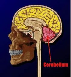 Cerebellar Ataxia Information !!  Damaged From Stroke DISCONNECT  ,