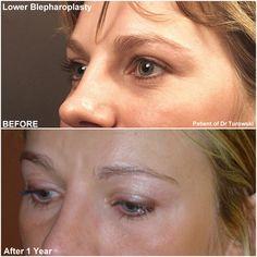 Harvard Yale, Eyelid Lift, Eyelid Surgery, Plastic Surgery, Chicago