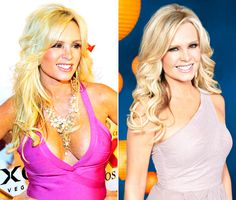 Tamra Barney (orange co housewife) removed DD's for B cups.