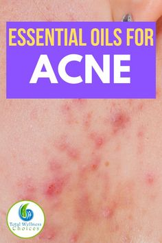 Here are the best essential oils for acne treatment. You will find these essential oils helpful if you are looking for how to get rid of acne or pimples naturally. Back Acne Treatment, Natural Acne Treatment, Natural Acne Remedies, Skin Care Remedies, Acne Oil, Plant Therapy, Natural Essential Oils, Natural Oils, Natural Skin