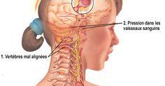 Habitudes fréquentes qui résultent en maux de tête - migraines-et-serotonine