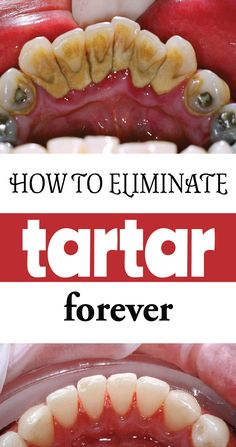 Tartar disfigures our teeth. In this article we will explain what causes tartar, and ways to eliminate it in the most natural way possible