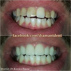 Front Teeth, Number, Phone, Free, Telephone, Mobile Phones