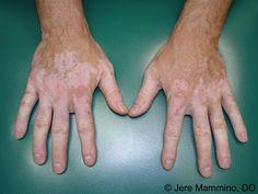 ¿Le preocupa al ver manchas blancas en la piel? ¿Quieres conocer losremedios caseros para manchas blancas en la piel? El vitiligo es una enfermedad que hace que las manchas blancas que aparecen en la piel. Esto puede afectar a cualquier parte de su cuerpo y las manchas blancas aparecen sobre todo en las manos, la cara, la espalda y otras partes del cuerpo. ¿Qué es una mancha blanca en la piel? Vitiligo o manchas blancas se forman en la piel si las células que producen los pigmentos…
