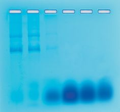 204 - Sep. of RNA and DNA by Gel Filtration Chromatography