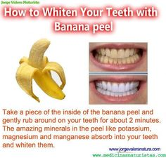 How to Whiten Your Teeth with Banana peel  Read more: http://www.medimiss.net/2012/08/how-to-whiten-your-teeth-with-banana.html#ixzz2bsZeKhJd
